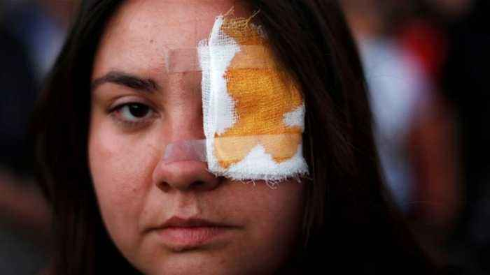 Chile police suspend use of rubber bullets over eye injuries
