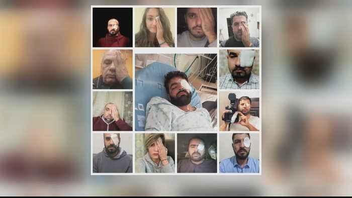 Palestinian journalist: Man shot by Israeli forces loses eye