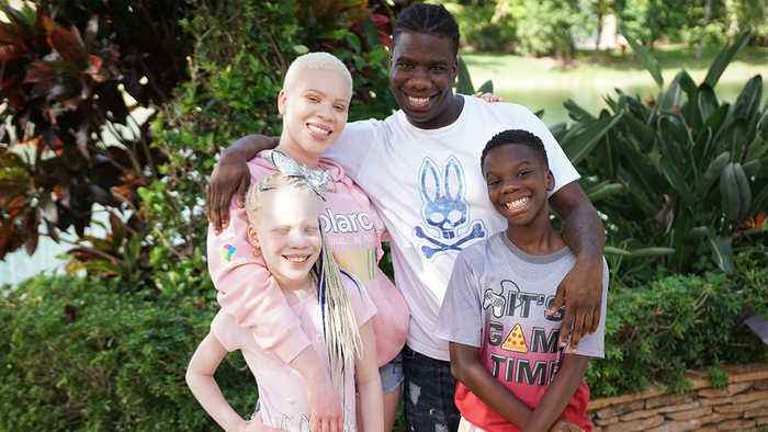 My Twin Sister Has Albinism