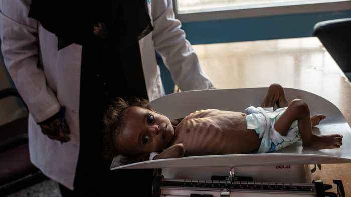 Report: U.S. Considering Suspending Humanitarian Aid To War-Torn Yemen