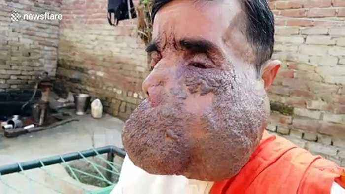 Indian priest worshipped as a god due to massive facial tumour says he's nearly 'exhausted savings' in search for cure