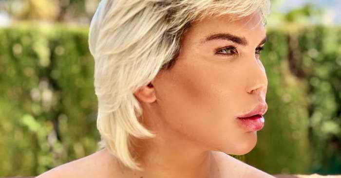 11 plastic surgeries later, the 'Human Ken's' nose has totally collapsed