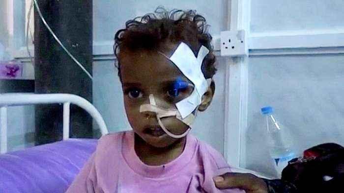 UN urges immediate truce in five-year conflict in Yemen
