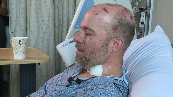 News video: Transient Man Attacked with Machete, Chain in Vicious Assault
