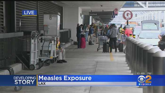 Another Case Of Measles Reported At LAX