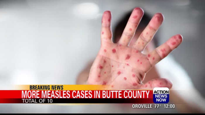 Three new measles cases confirmed in Butte County