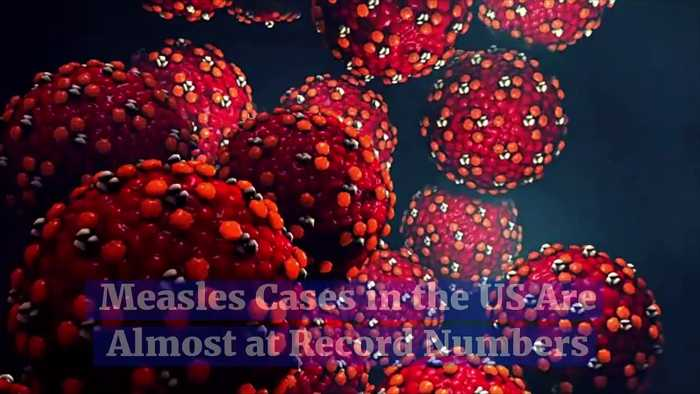 Measles Cases in the US Are Almost at Record Numbers