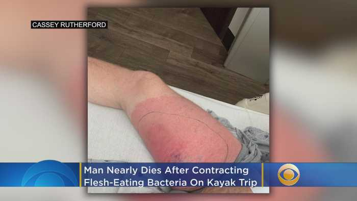 Man Fights For His Life After Contracting Flesh-Eating Bacteria On Kayak Trip