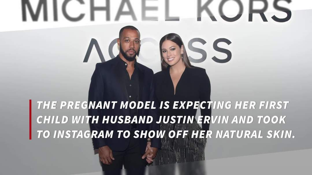 Ashley Graham praised for showing off stretch marks