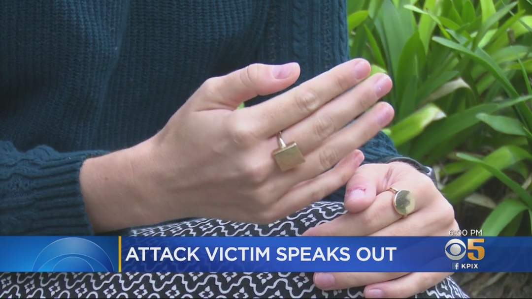 Woman Says San Francisco Attack Suspect Chased Her And Her Mother