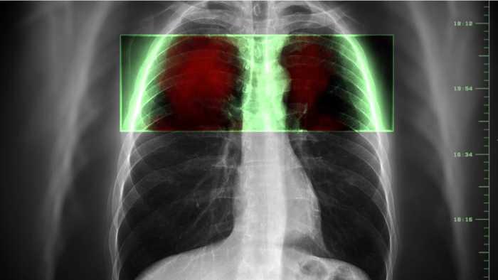 U.S. Senators Call On FDA To Ban E-Cigarettes Immediately