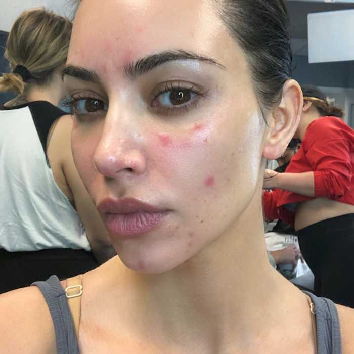 Kim K shares how she overcame her struggles with psoriasis