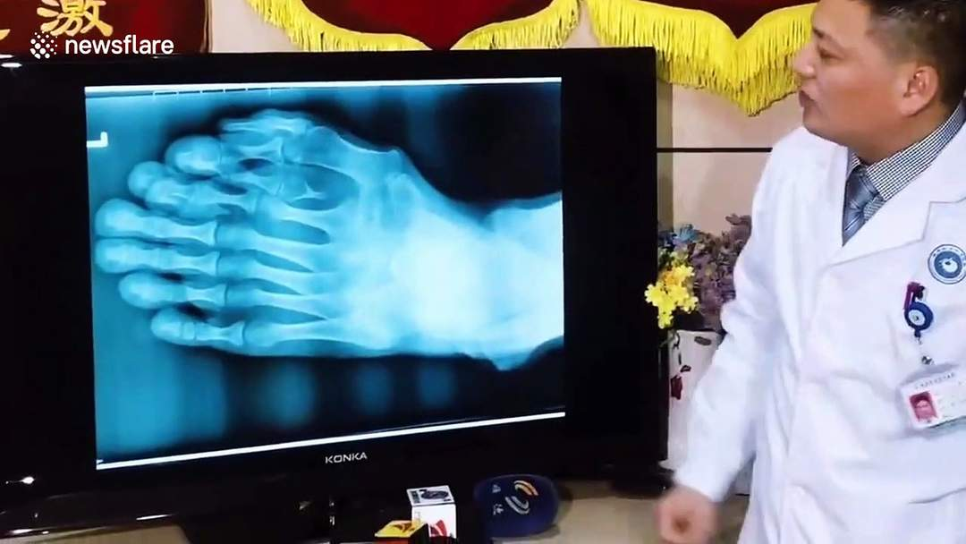 Chinese man with nine toes on one foot has surgery to remove the extras