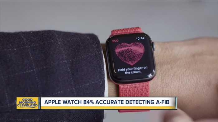 Apple Watch scores well detecting irregular heartbeats