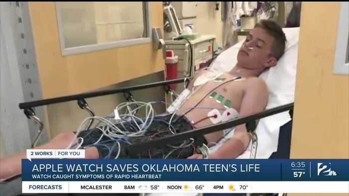 Apple watch saves Oklahoma teen's life