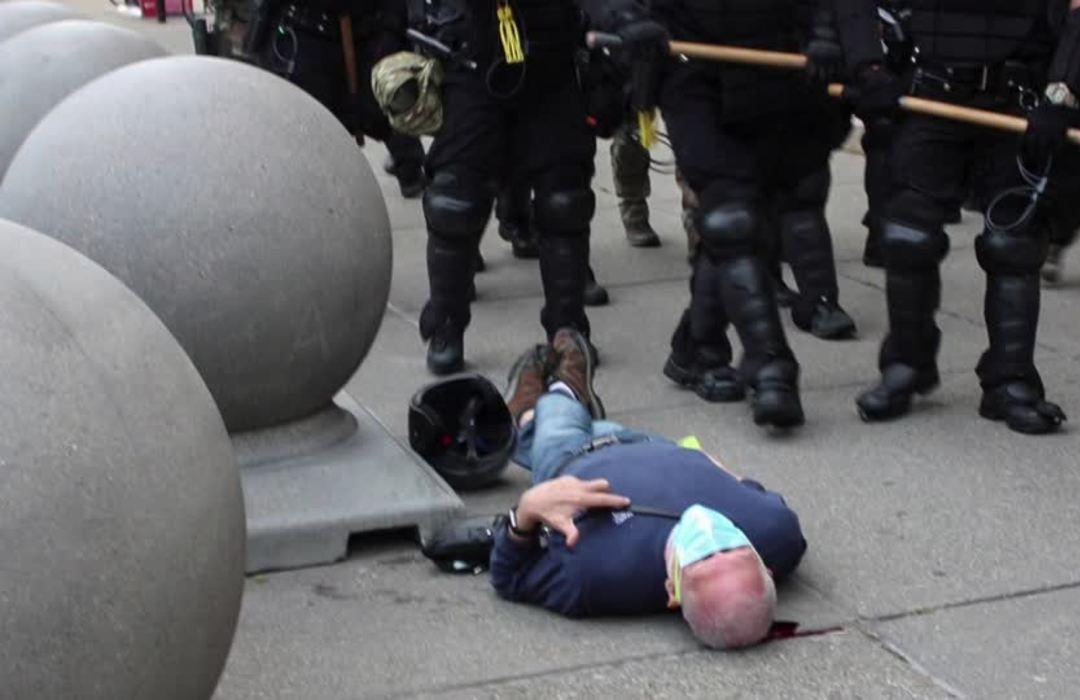 Trump claims 75-year-old injured by cops may be 'ANTIFA'