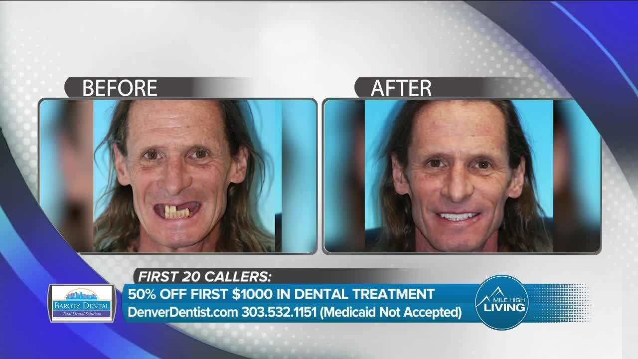 Fixing Smiles & Changing Lives // Barotz Dental