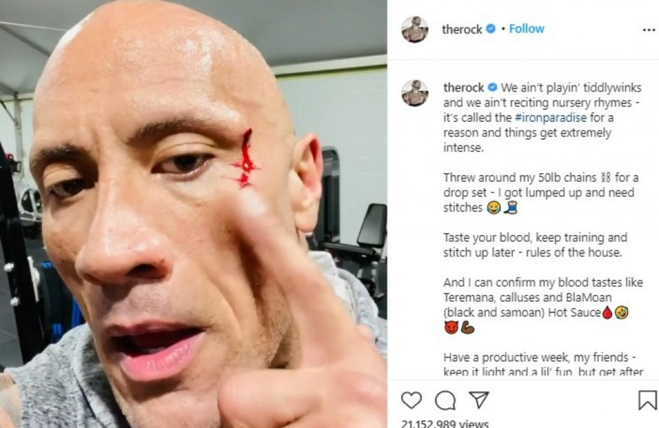 Dwayne 'The Rock' Johnson needed stitches after suffering an eye injury.