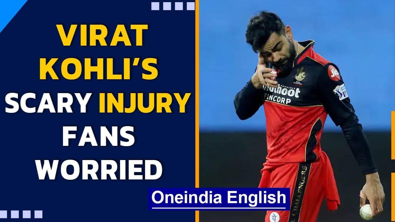 IPL 2021: Virat Kohli plays with swollen eye after a near-miss injury #RCBvsMI   Oneindia News