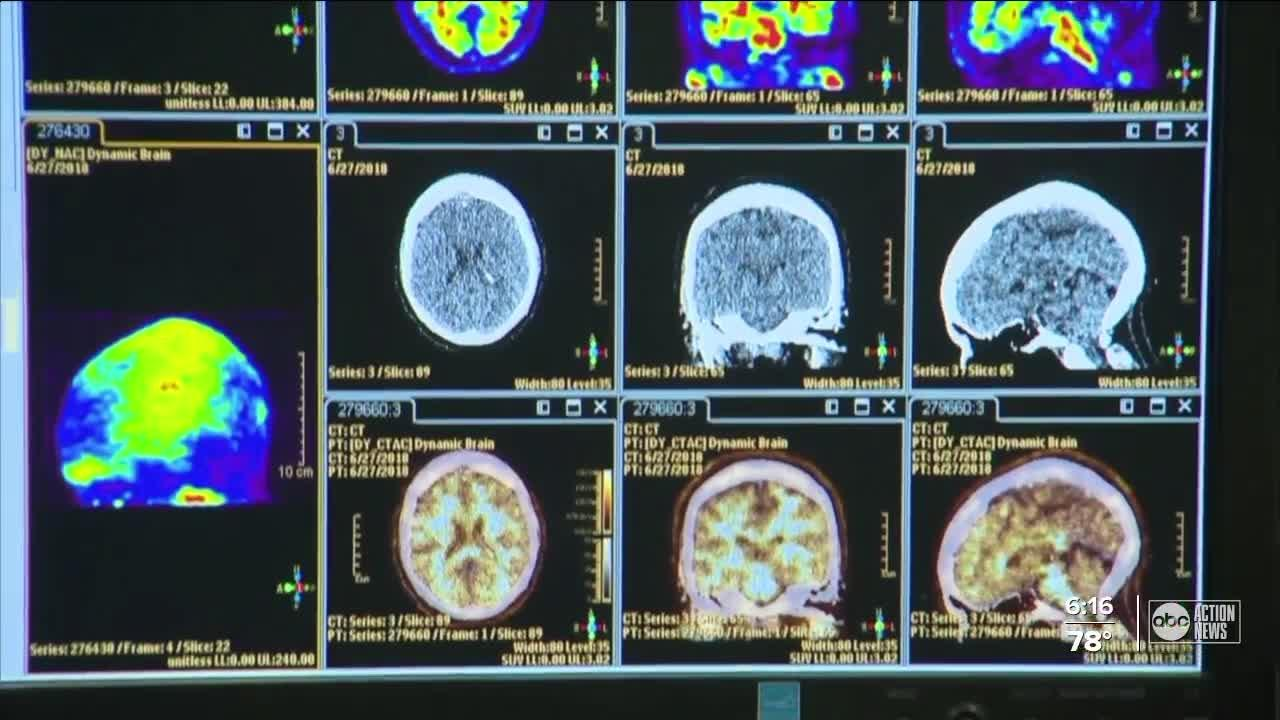 USF conducting new study to combat Alzheimer's
