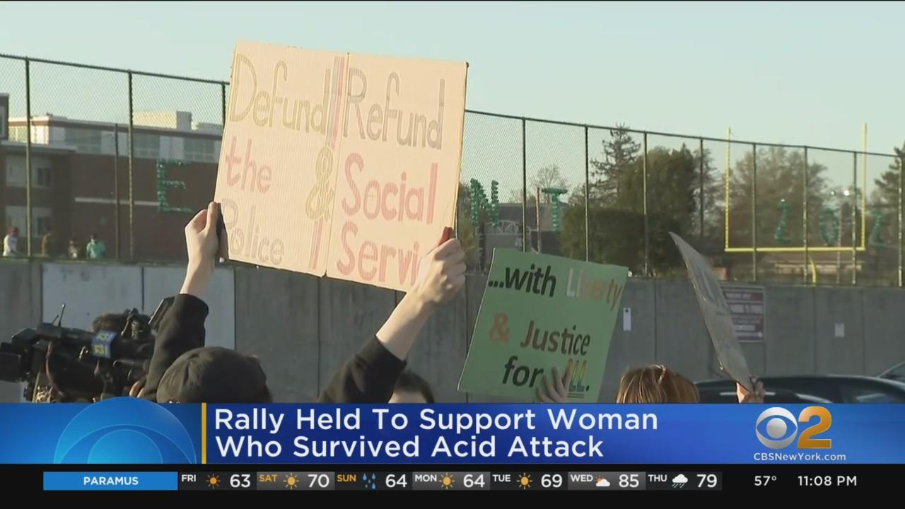 Rally Held To Support Woman Who Survived Acid Attack