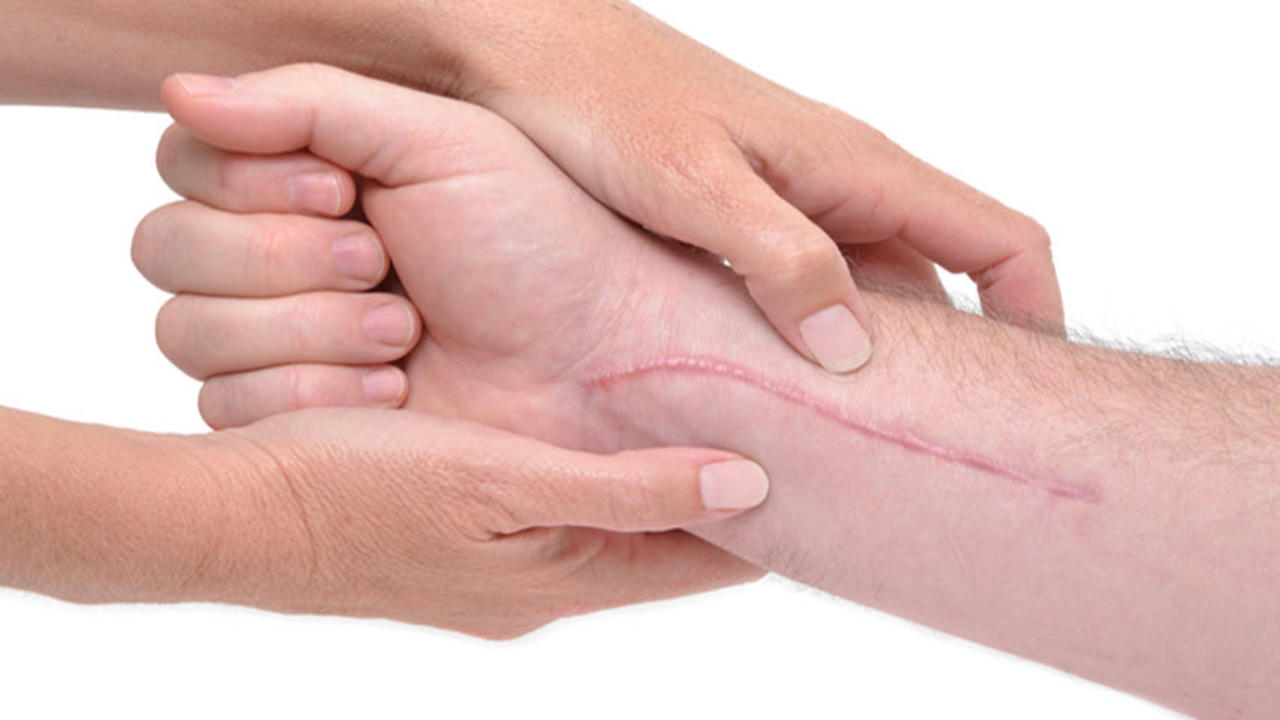 Understanding carpal tunnel syndrome and it's treatments
