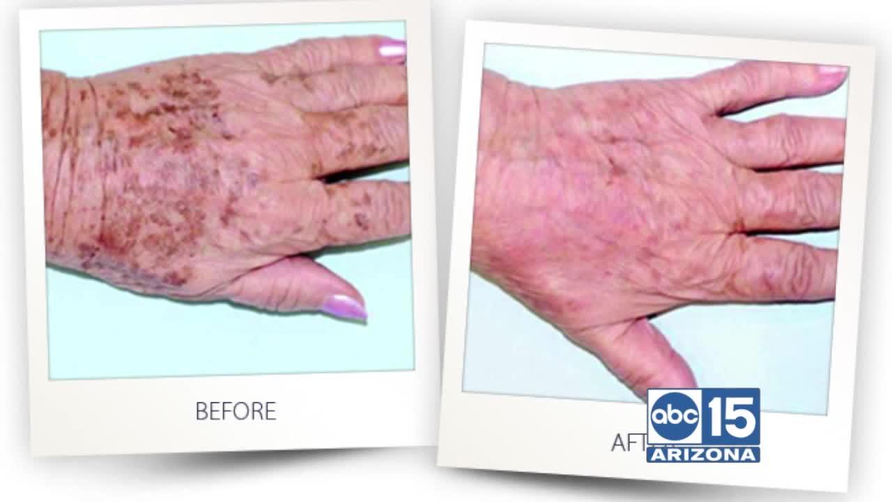 Martha Bartleson of Turn Back Time Spa & Wellness Clinic uses intense pulse light to remove dark spots and reduce lines and wrin