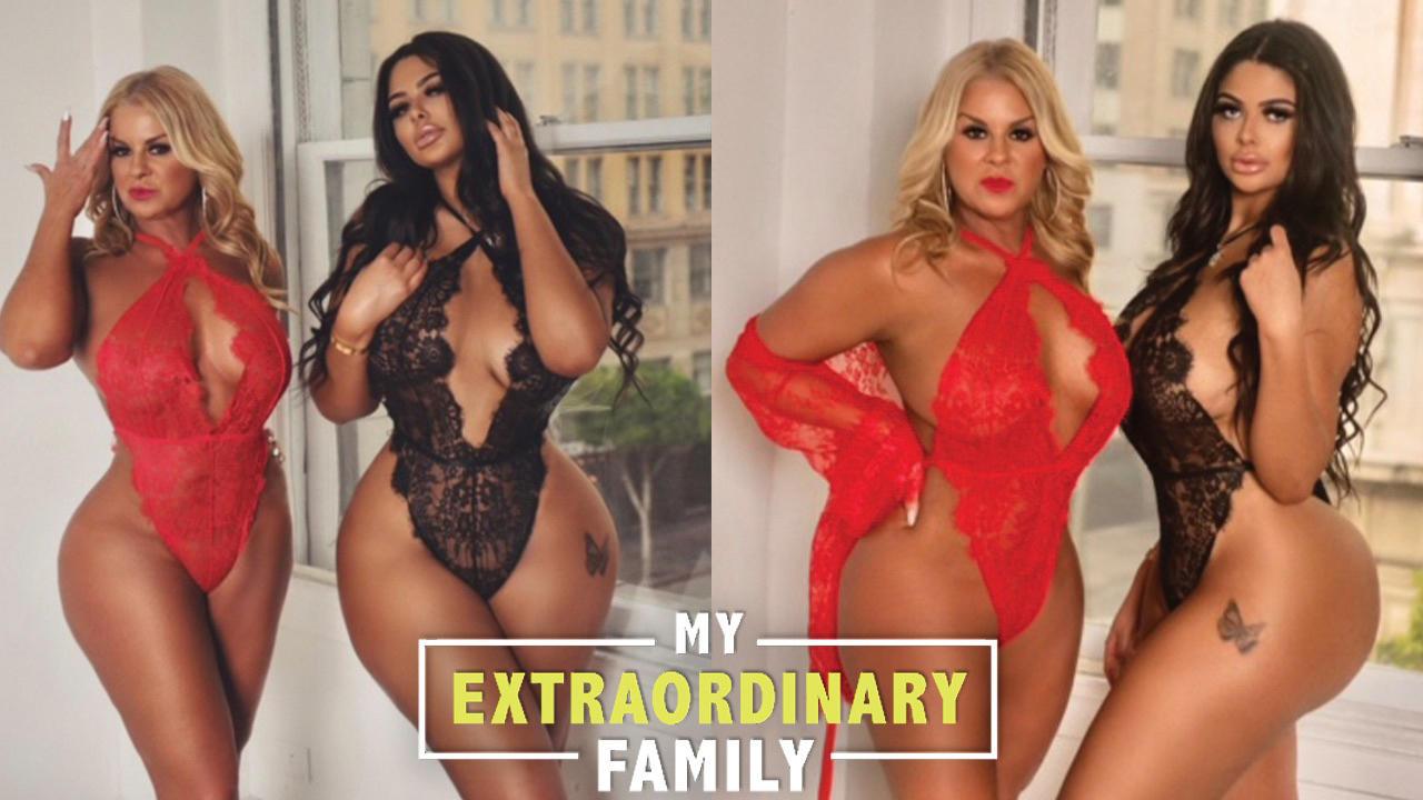 My Mum And I Got Matching Boob Jobs | MY EXTRAORDINARY FAMILY