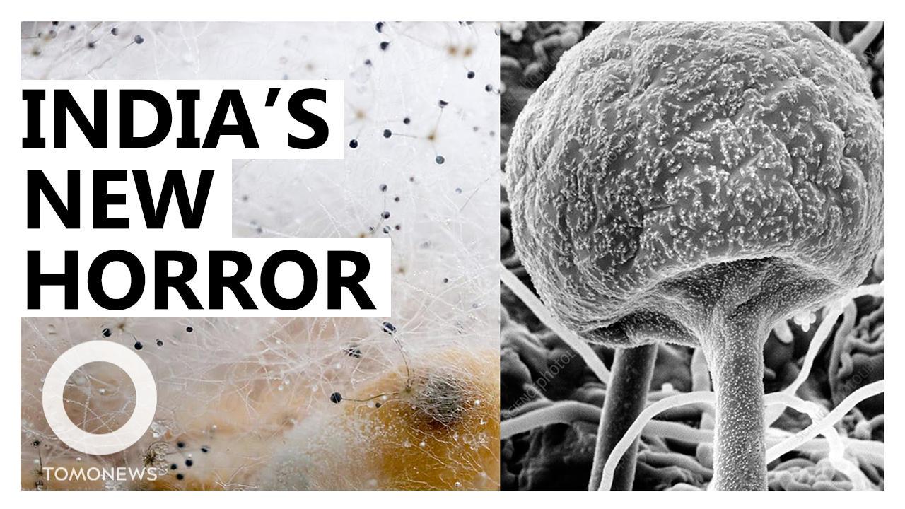 Deadly 'Black Fungus' Attacking Covid Survivors in India
