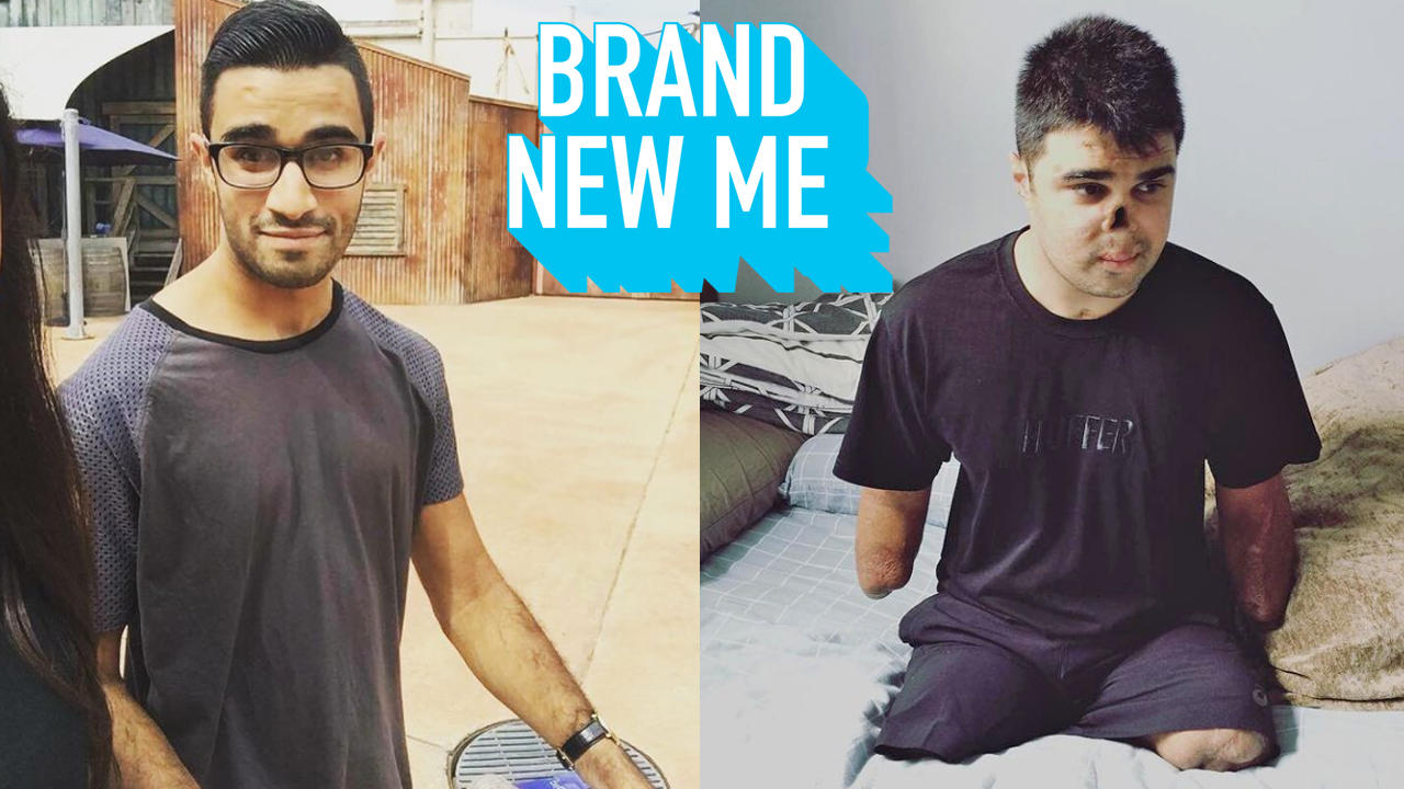 I Lost My Limbs When I Was 21 | BRAND NEW ME
