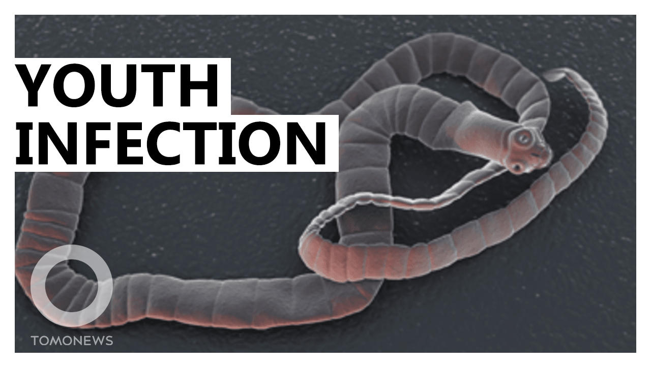 Tapeworms in Ants Keep Hosts Young for the Strangest Reason