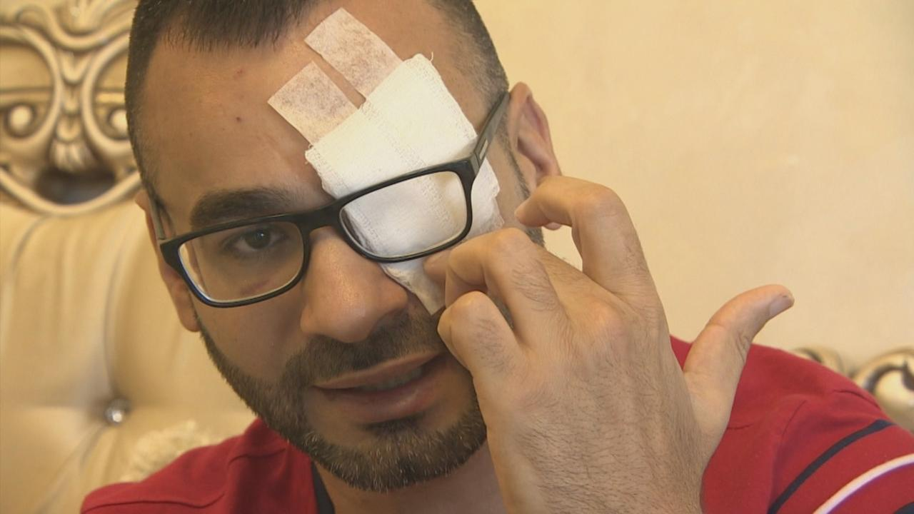 Blinded by rubber bullets: Palestinians accuse Israeli police of excessive force