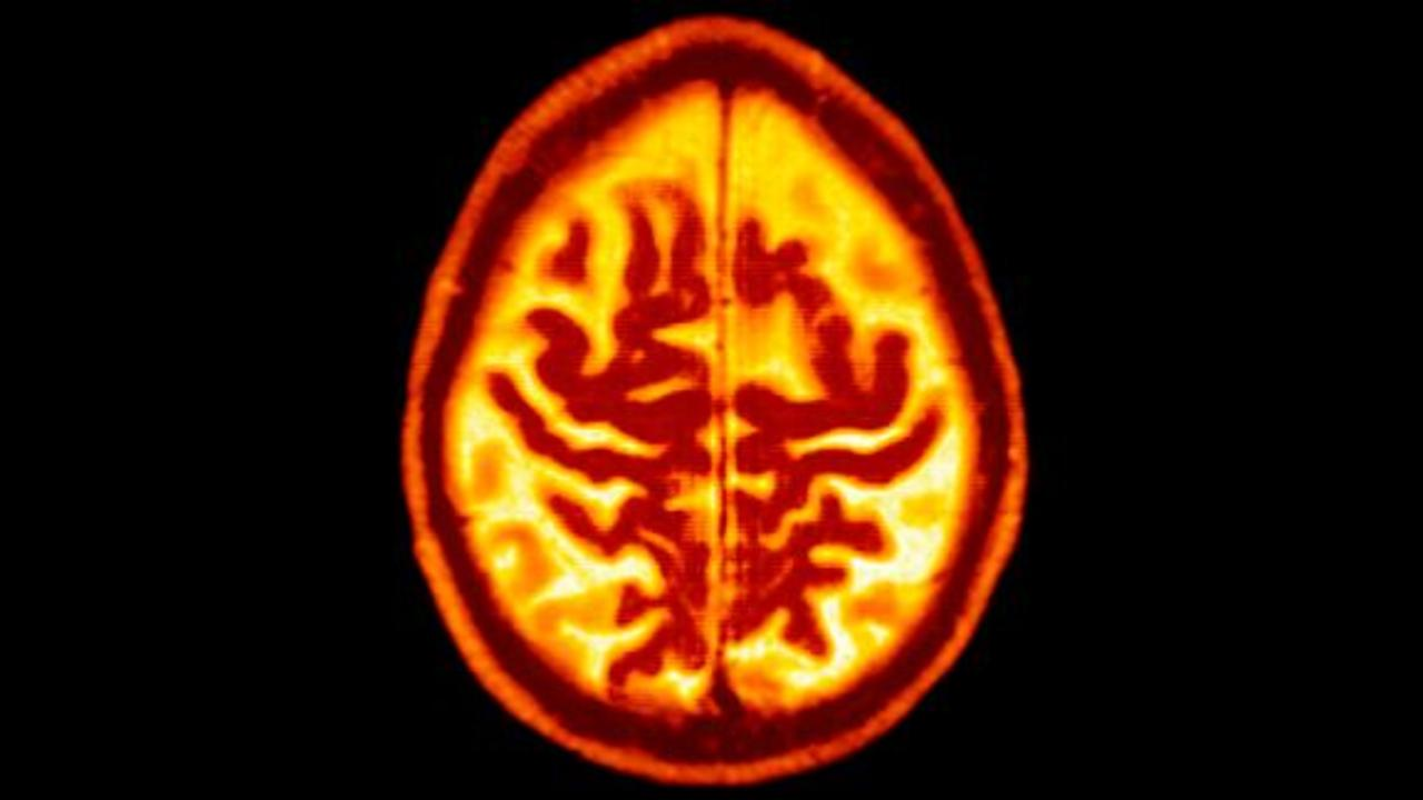 FDA approves an Alzheimers drug