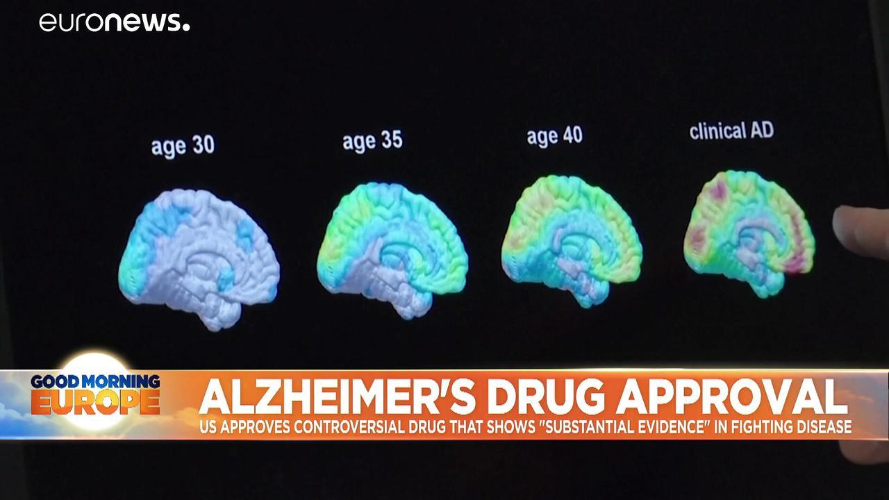 Breakthrough or hype? US approves much-debated new Alzheimer's drug