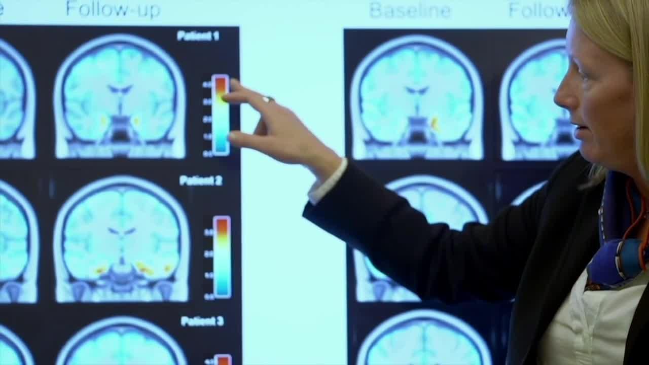 Dent Neurologic Institute offering new Alzheimer's treatment following historic FDA approval