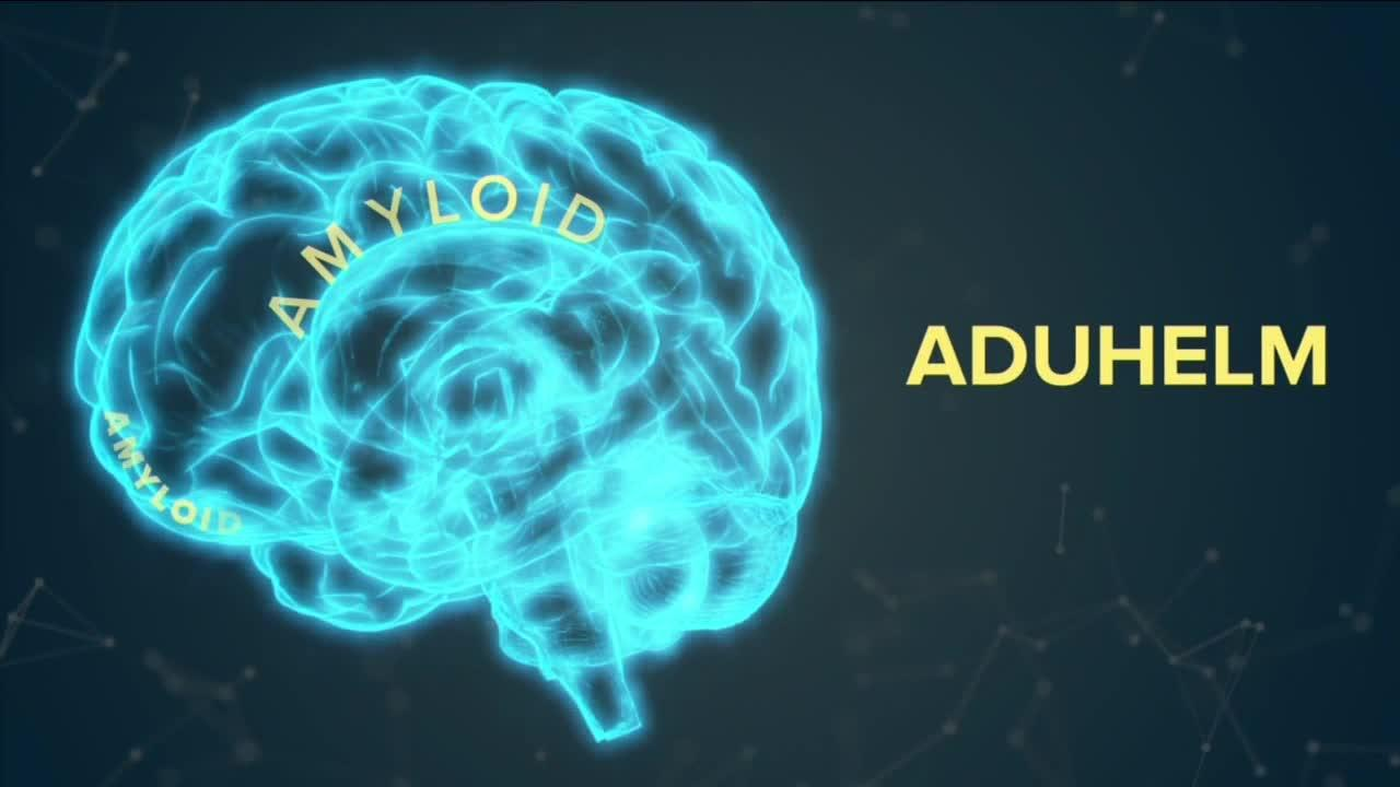 Is a new drug to help Alzheimer's disease effective, safe and affordable?