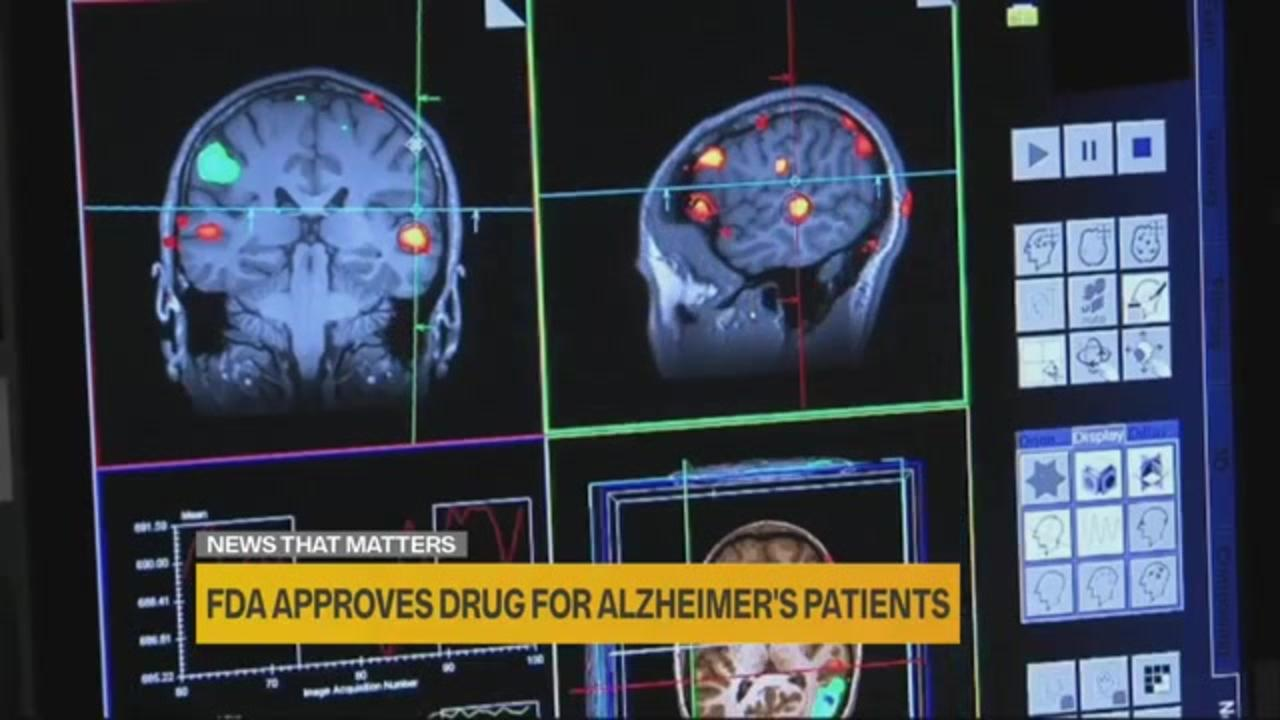 What you need to know about the approval of a new Alzheimer's drug
