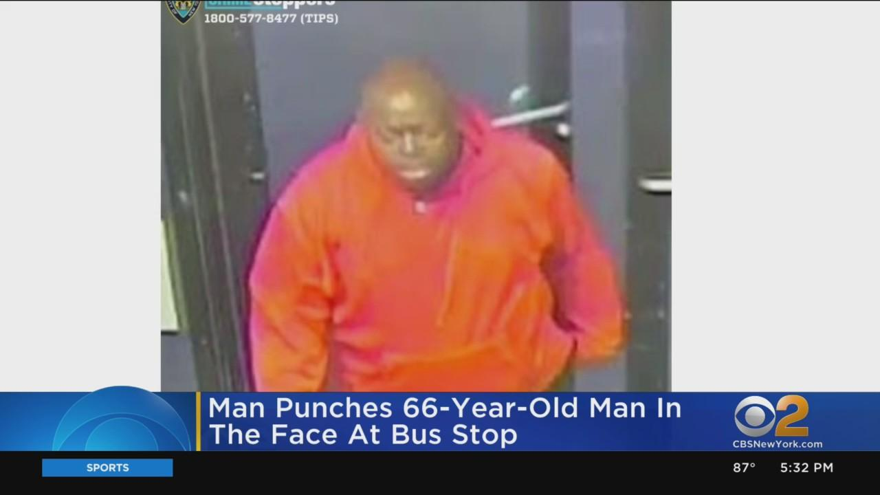 Man Punches 66-Year-Old Man In Face At Bus Stop