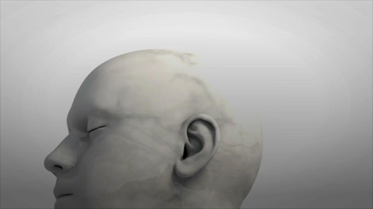El primer medicamento para la enfermedad de Alzheimer en 20 años ha sido aprobado en los Estados Unidos