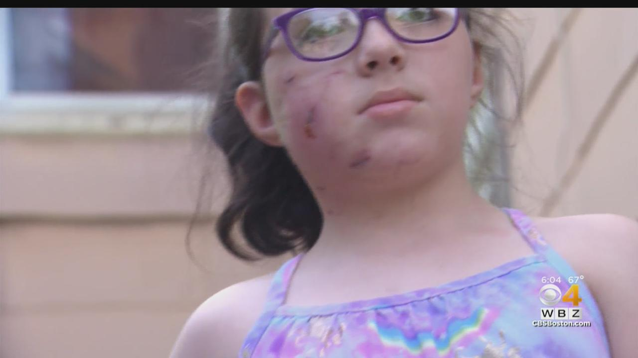 8-Year-Old Girl Attacked By Pit Bull In Her Own Yard; Police Looking For Dog Owner