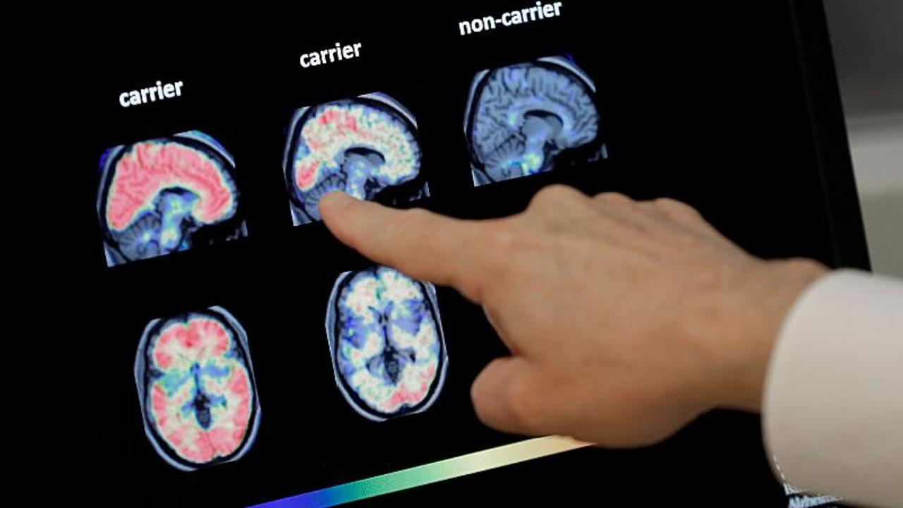 Can Artificial Intelligence help identify people at risk of developing Alzheimer's?