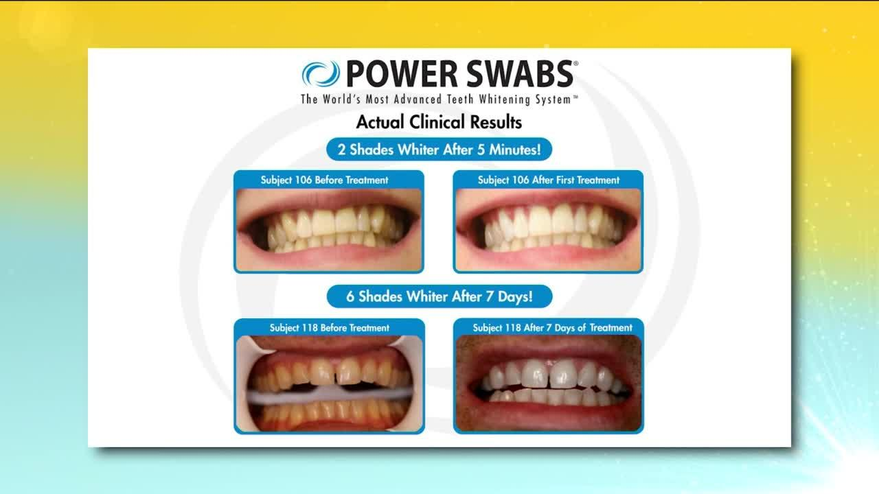 Brighten and whiten your teeth quickly using Power Swabs