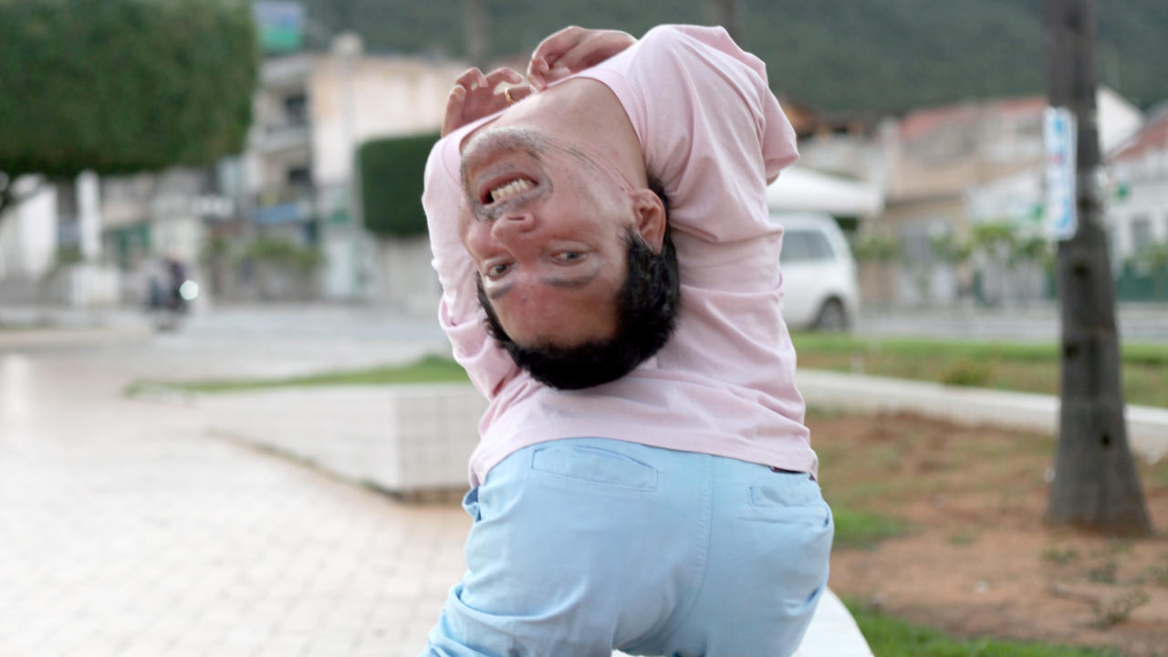 The Man With The Upside Down Head | BORN DIFFERENT
