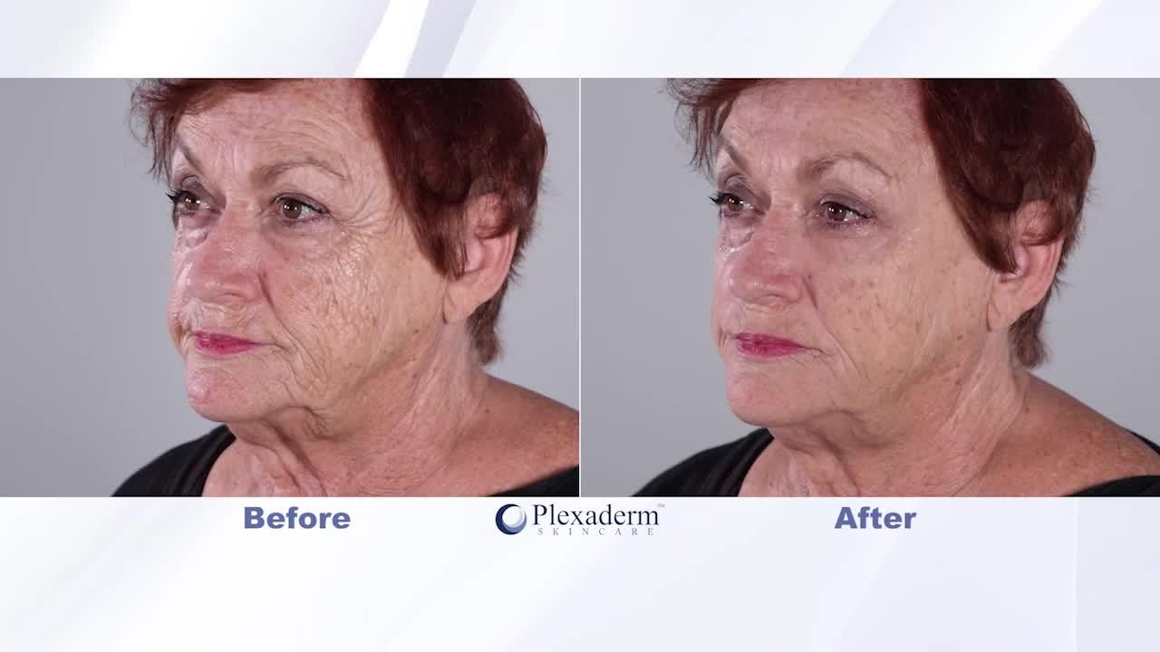 Get rid of under eye bags and wrinkles for up to 10 hours with Plexaderm