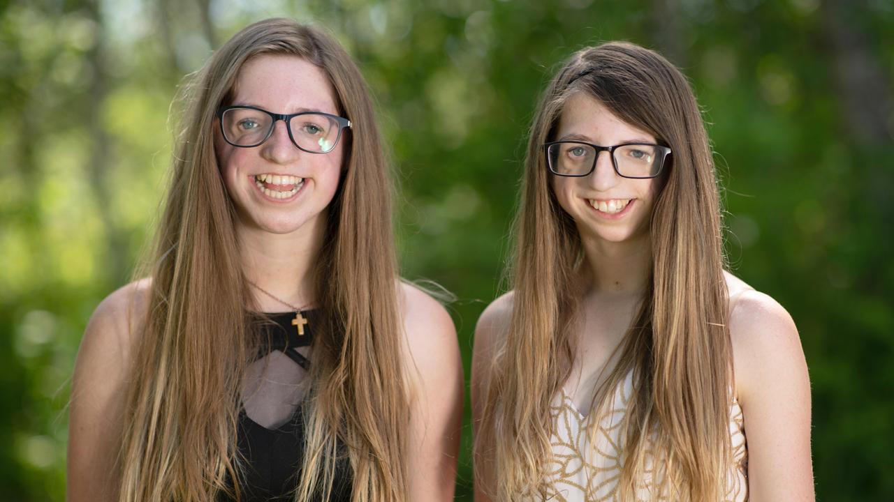 Identical Twins Refuse Treatment On Facial Differences | SHAKE MY BEAUTY