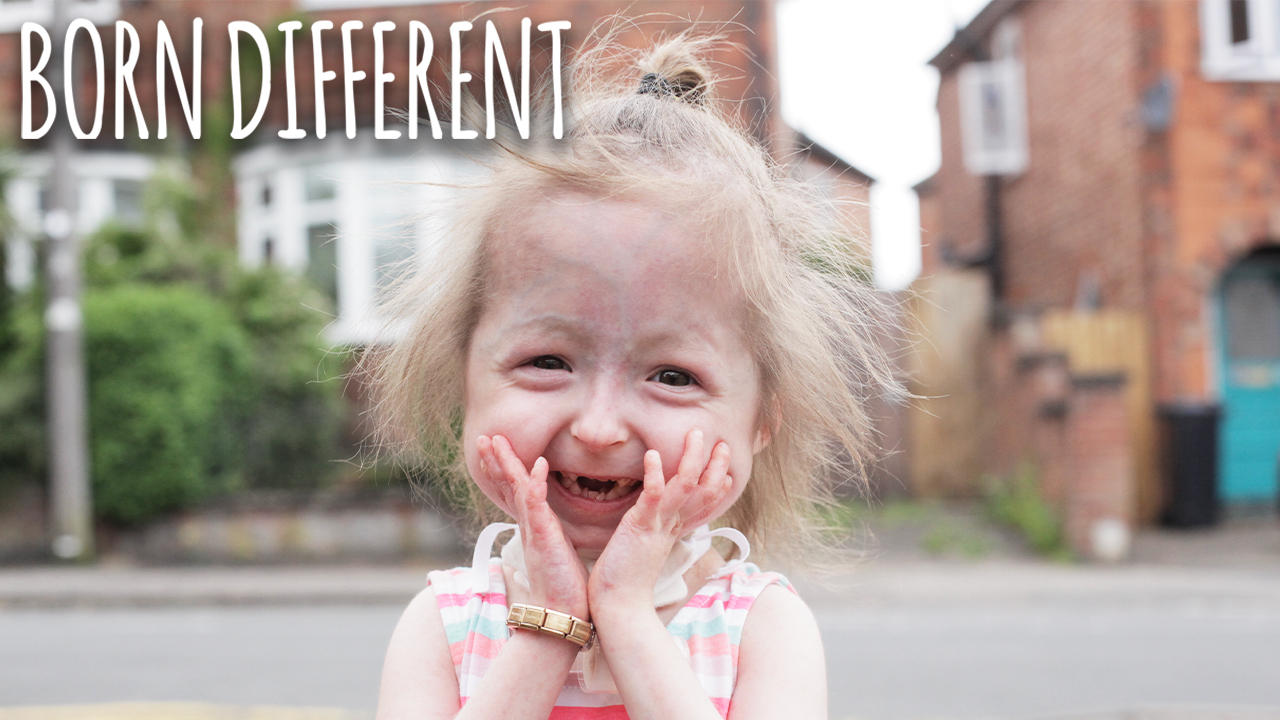 The Only Girl In The World With 'Benjamin Button' Disease   BORN DIFFERENT