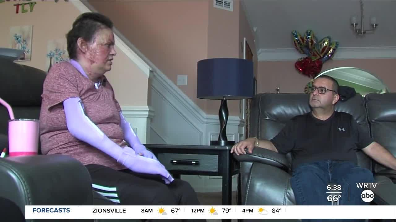 'Need three lives to pay': Indianapolis couple faces $2.9M hospital bill