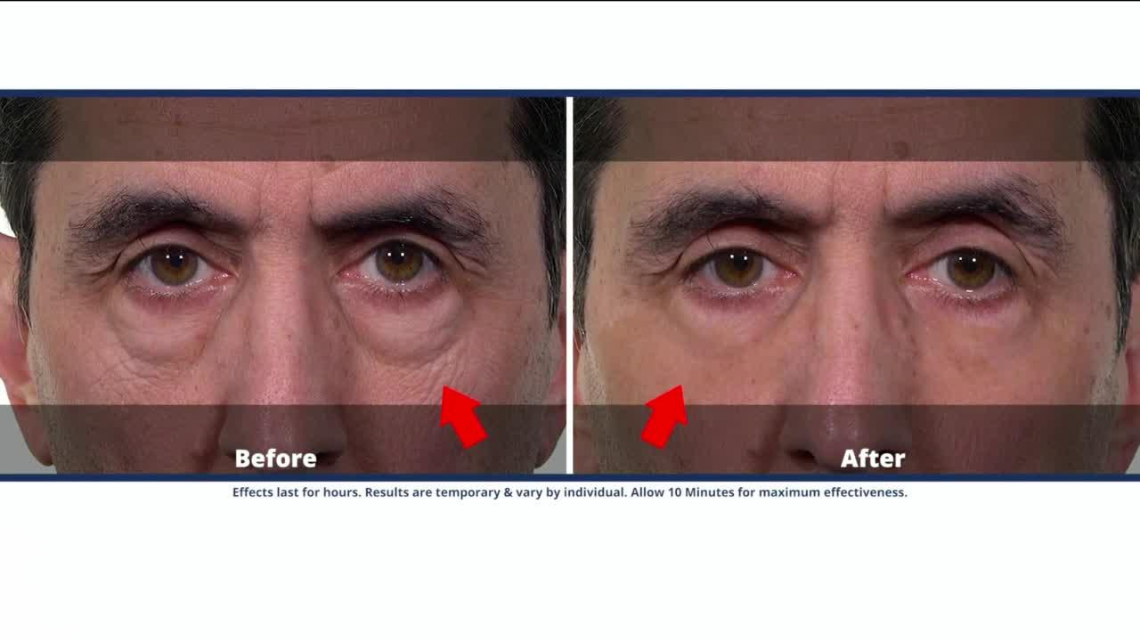 Refresh your look in just 10 minutes with Plexaderm
