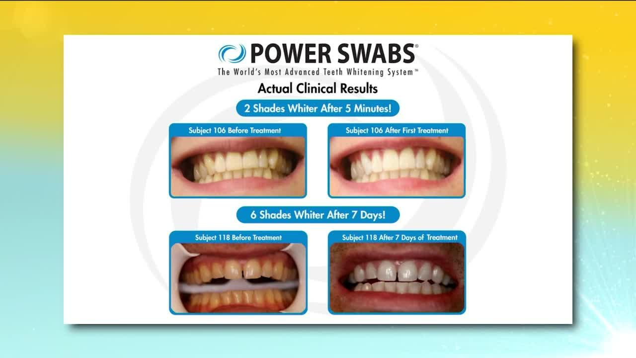 Smile brighter with the help of Power Swabs!