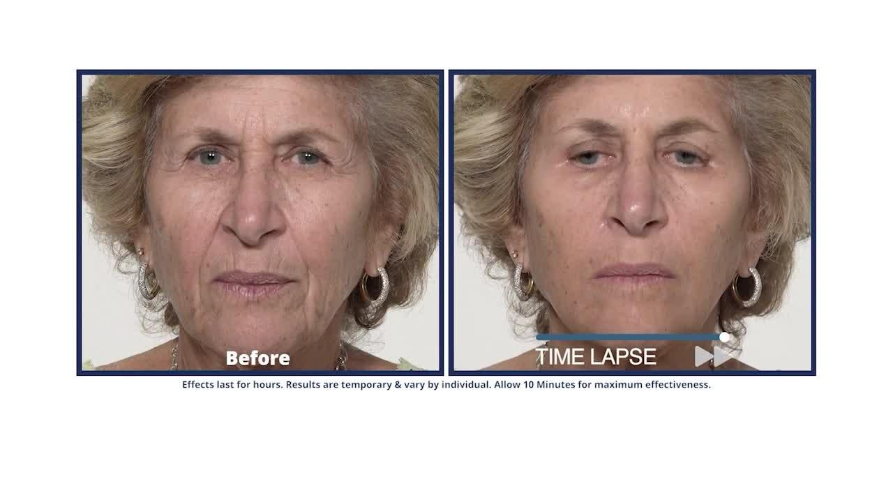 See what Plexaderm can do for you because the results are real